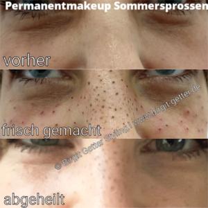 Permanentmakeup-Sommersprossen-Freckles-Tattoo